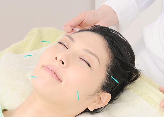 ジュノン式 美容鍼灸