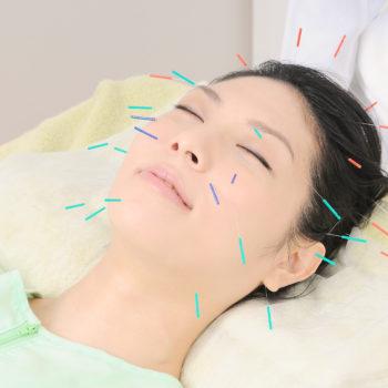 美容鍼灸 スペシャルコース【60分】