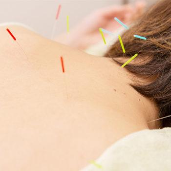全身鍼治療+リフトアップお灸コース【80分】