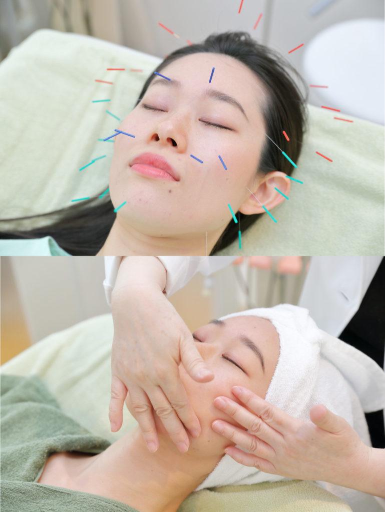 美容鍼灸とエステを施術している写真